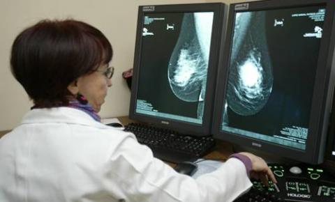 Hospital Regional de Corrente recebe resultado de 80 exames de mamografias