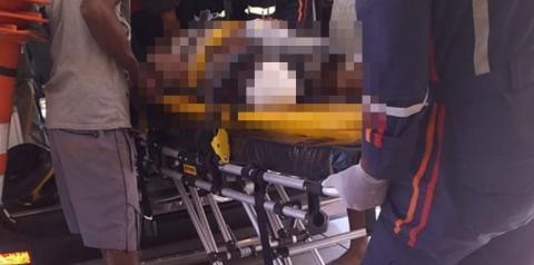 Grave acidente próximo ao IBC decepa a perna de motociclista