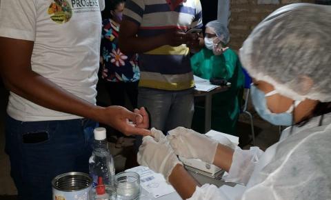 Piauí é o segundo estado do Brasil em realização de testes de coronavírus